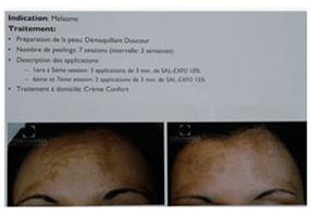 tache hyperpigmentation visage